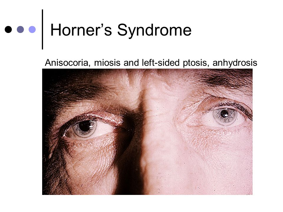 Horners Syndrome Anisocoria, miosis and left-sided ptosis, anhydrosis