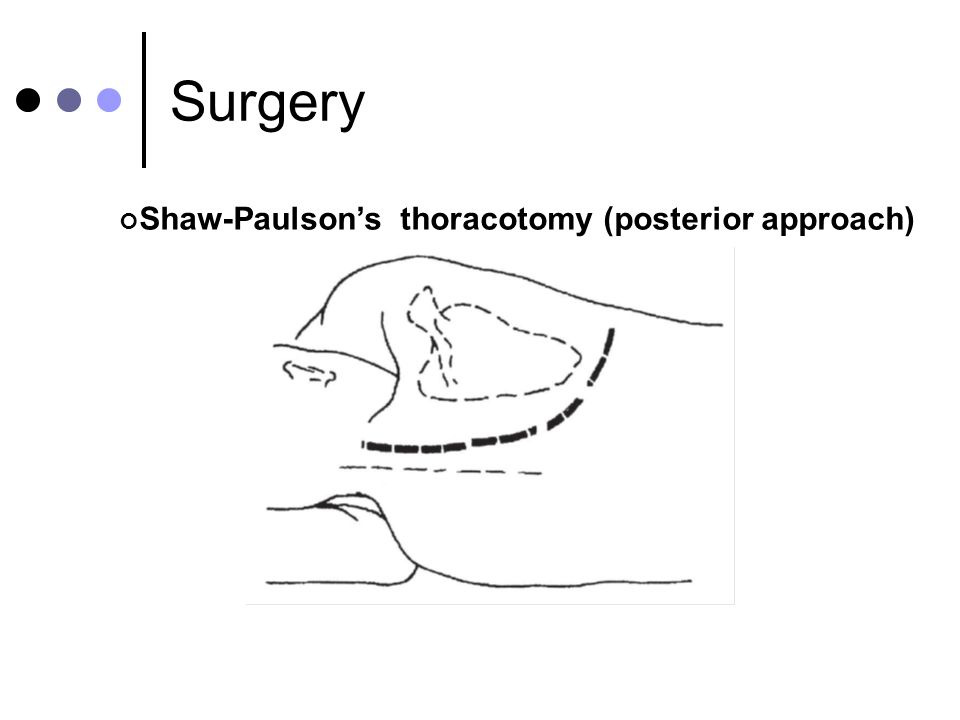 Shaw-Paulsons thoracotomy (posterior approach)