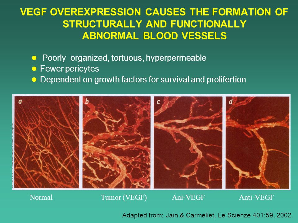 VEGF OVEREXPRESSION CAUSES THE FORMATION OF STRUCTURALLY AND FUNCTIONALLY ABNORMAL BLOOD VESSELS Poorly organized, tortuous, hyperpermeable Fewer peri