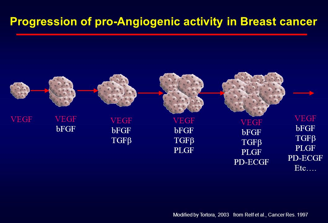 Progression of pro-Angiogenic activity in Breast cancer VEGF bFGF VEGF bFGF TGF VEGF bFGF TGF PLGF VEGF bFGF TGF PLGF PD-ECGF VEGF bFGF TGF PLGF PD-EC