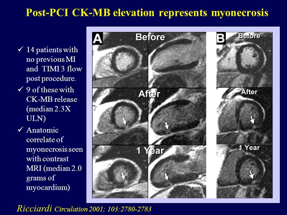 Post-PCI CK-MB elevation represents myonecrosis Ricciardi Circulation 2001; 103:2780-2783 14 patients with no previous MI and TIMI 3 flow post procedure.