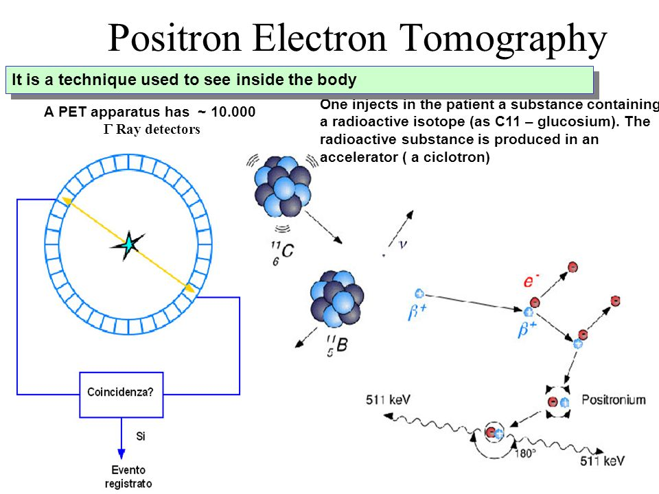 Positron Electron Tomography One injects in the patient a substance containing a radioactive isotope (as C11 – glucosium). The radioactive substance i