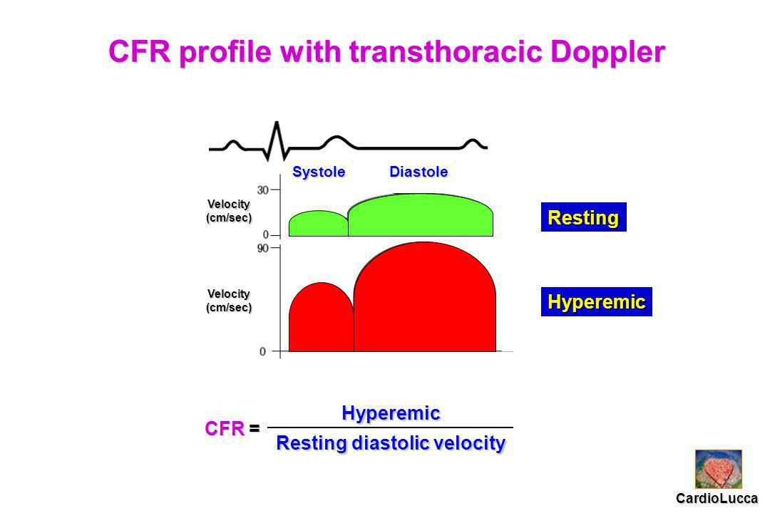 CFR profile with transthoracic Doppler Hyperemic Resting diastolic velocity SystoleDiastole Velocity(cm/sec) Velocity(cm/sec) Resting Hyperemic CardioLucca CFR =