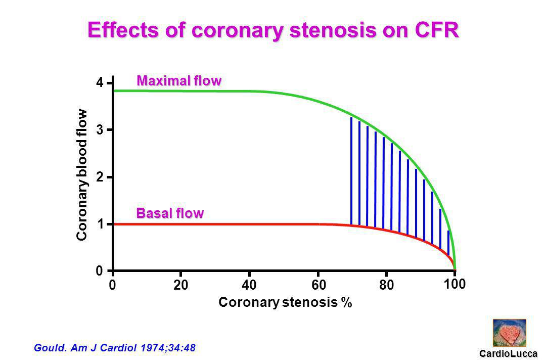 Coronary blood flow Coronary stenosis % 0 0 1 2 3 4 20 40 6080 100 Basal flow Basal flow Maximal flow Maximal flow Effects of coronary stenosis on CFR Gould.
