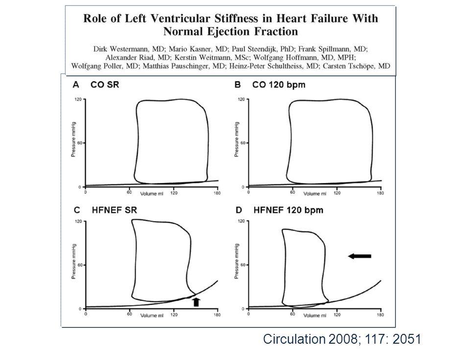 Ventricular–vascular interaction in DHF (arterial elastance) Kawaguchi M et al.