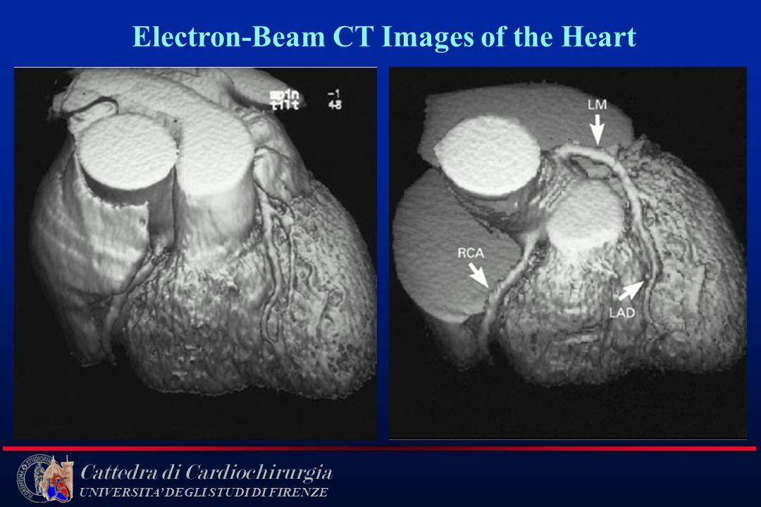 Cattedra di Cardiochirurgia UNIVERSITA DEGLI STUDI DI FIRENZE Electron-Beam CT Images of the Heart