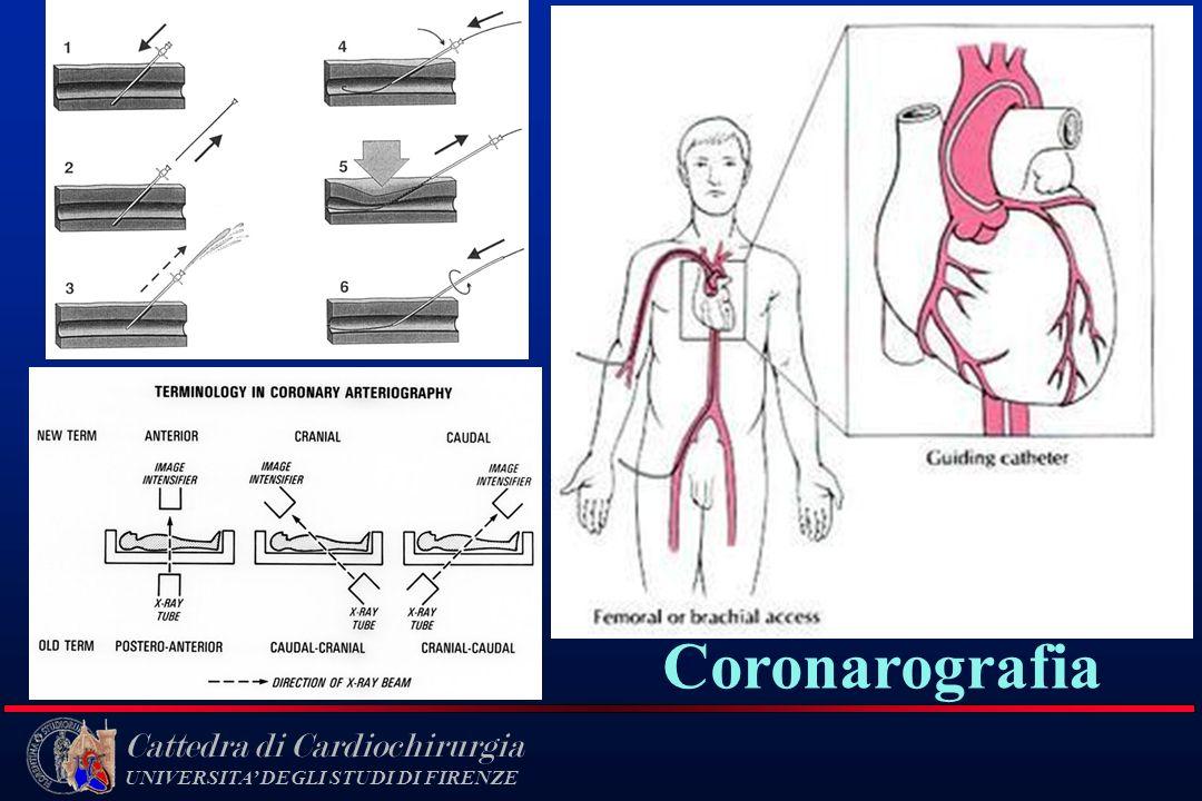 Cattedra di Cardiochirurgia UNIVERSITA DEGLI STUDI DI FIRENZE Coronarografia