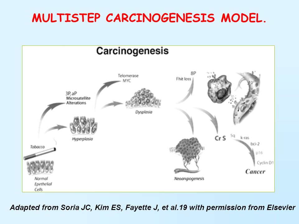 MULTISTEP CARCINOGENESIS MODEL.