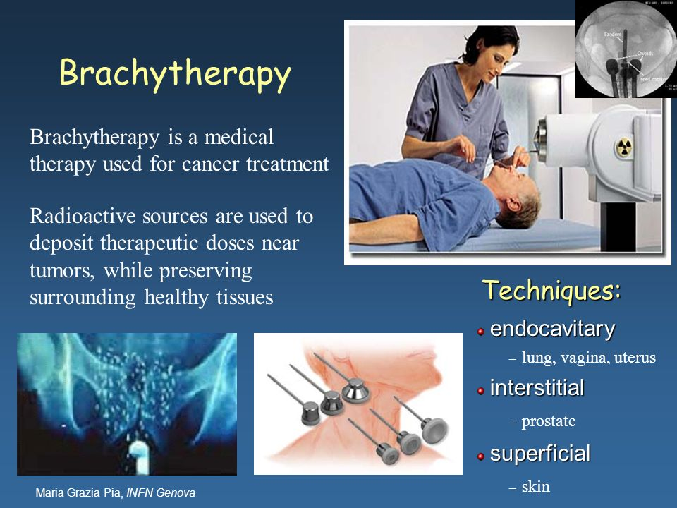 Maria Grazia Pia, INFN Genova Brachytherapy is a medical therapy used for cancer treatment Radioactive sources are used to deposit therapeutic doses n