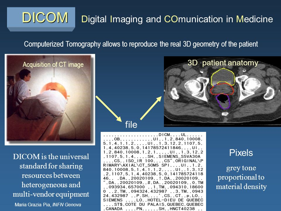 Maria Grazia Pia, INFN Genova DICOM DICOM Acquisition of CT image 3D patient anatomy Computerized Tomography allows to reproduce the real 3D geometry