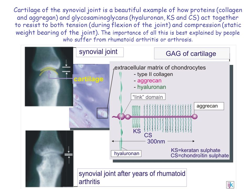 Cartilage of the synovial joint is a beautiful example of how proteins (collagen and aggregan) and glycosaminoglycans (hyaluronan, KS and CS) act toge