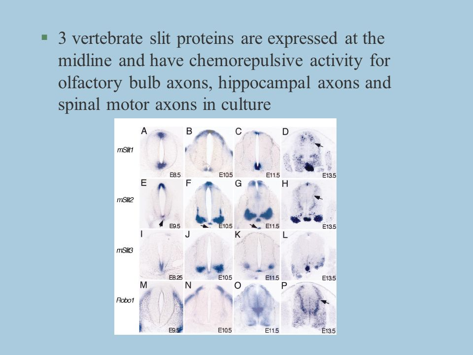 §3 vertebrate slit proteins are expressed at the midline and have chemorepulsive activity for olfactory bulb axons, hippocampal axons and spinal motor