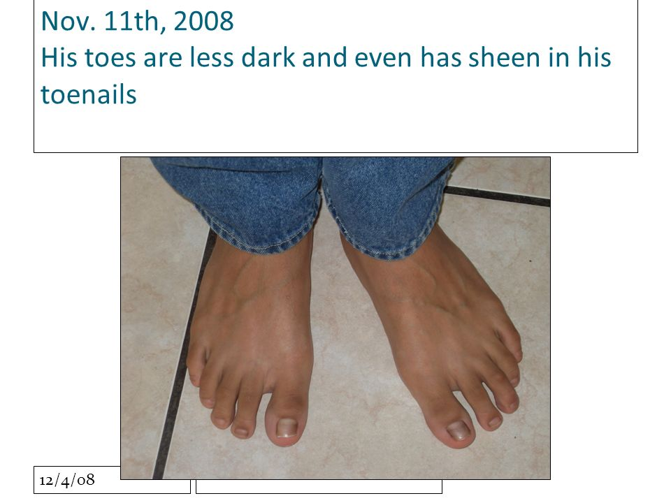 12/4/08 Nov. 11th, 2008 His toes are less dark and even has sheen in his toenails