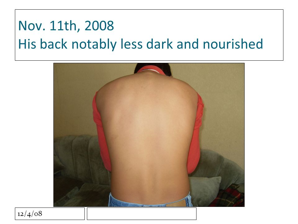 12/4/08 Nov. 11th, 2008 His back notably less dark and nourished