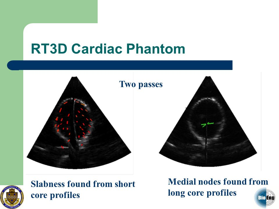 RT3D Cardiac Phantom Slabness found from short core profiles Medial nodes found from long core profiles Two passes