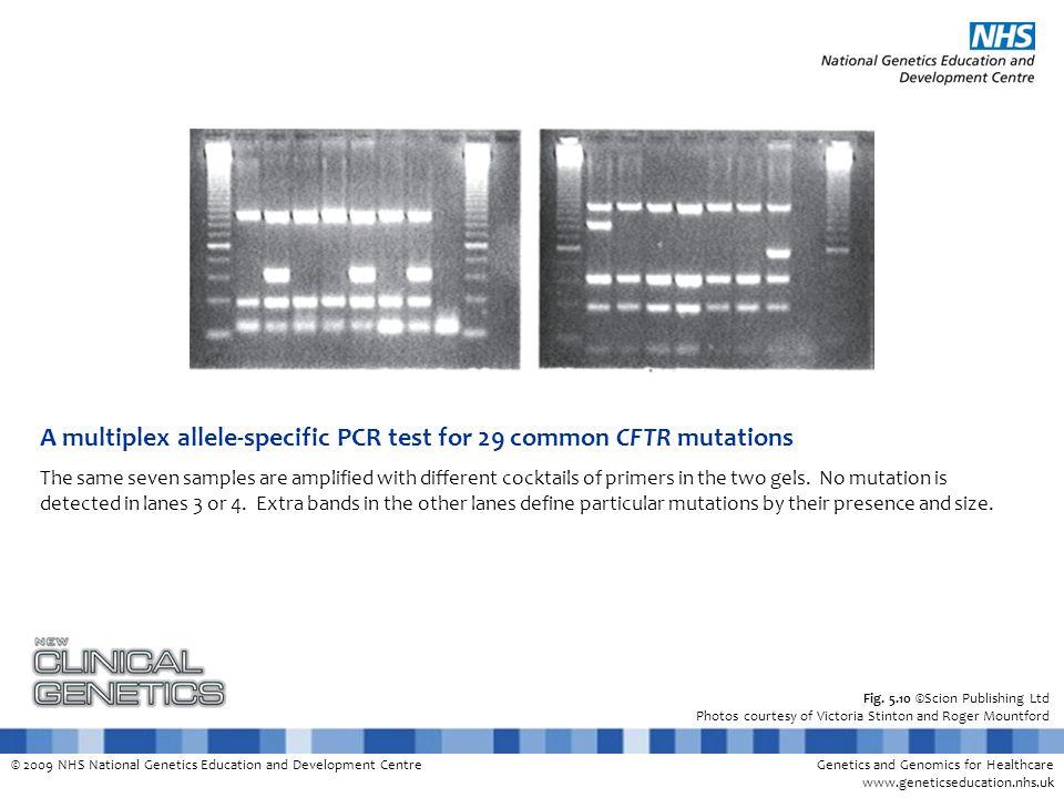 © 2009 NHS National Genetics Education and Development CentreGenetics and Genomics for Healthcare www.geneticseducation.nhs.uk Fig. 5.10 ©Scion Publis