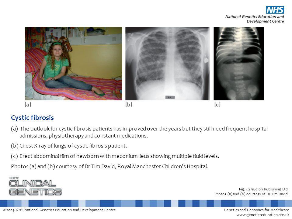 © 2009 NHS National Genetics Education and Development CentreGenetics and Genomics for Healthcare www.geneticseducation.nhs.uk Fig. 1.2 ©Scion Publish