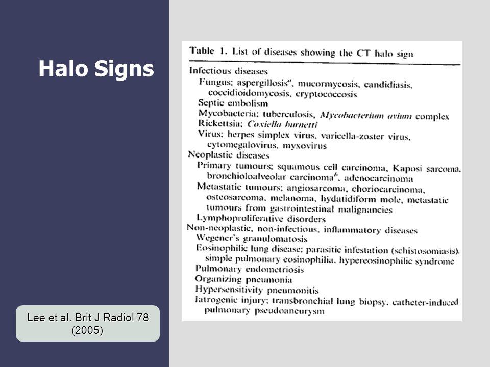 Halo Signs Lee et al. Brit J Radiol 78 (2005)