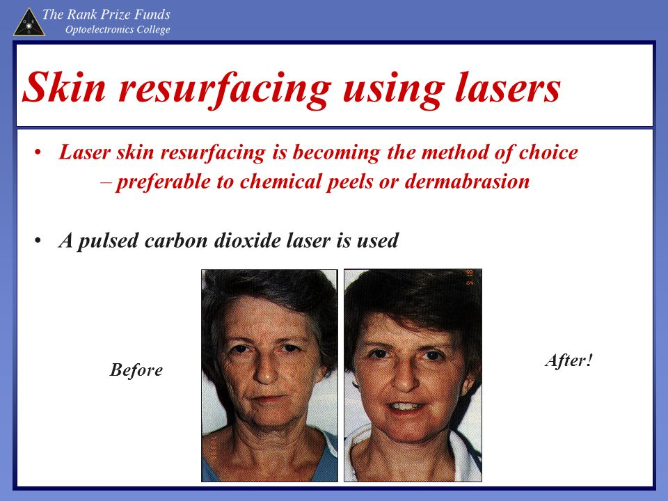 Skin resurfacing using lasers Laser skin resurfacing is becoming the method of choice –preferable to chemical peels or dermabrasion A pulsed carbon di