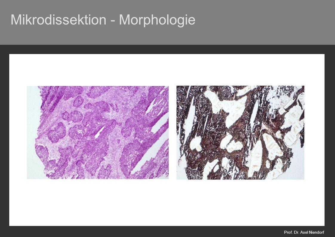 Mikrodissektion - Morphologie Prof. Dr. Axel Niendorf