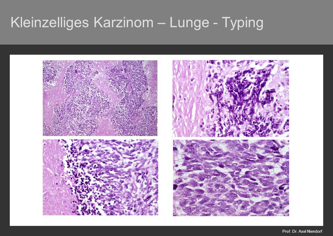 Bronchialkarzinom - Heterogenität –innerhalb einer Gruppe –innerhalb eines Falles: 45% major heterogeneity Roggli et al., 1985 Hum Pathol