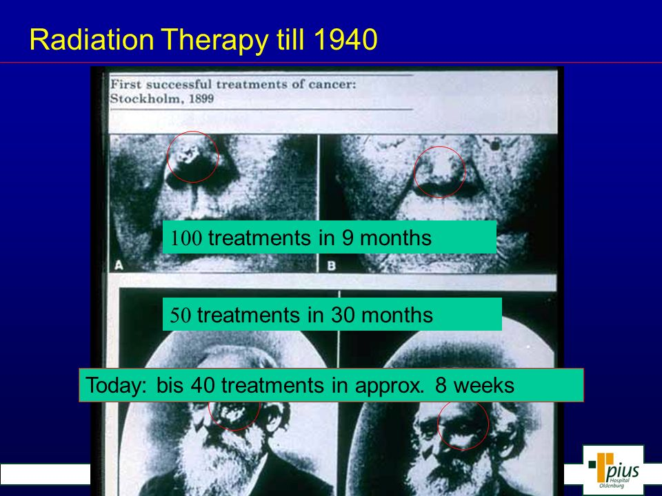 Klinik für Strahlentherapie und Onkologie Radiation therapy after1940 Cobalt-bomb Pius-Hospital approx.