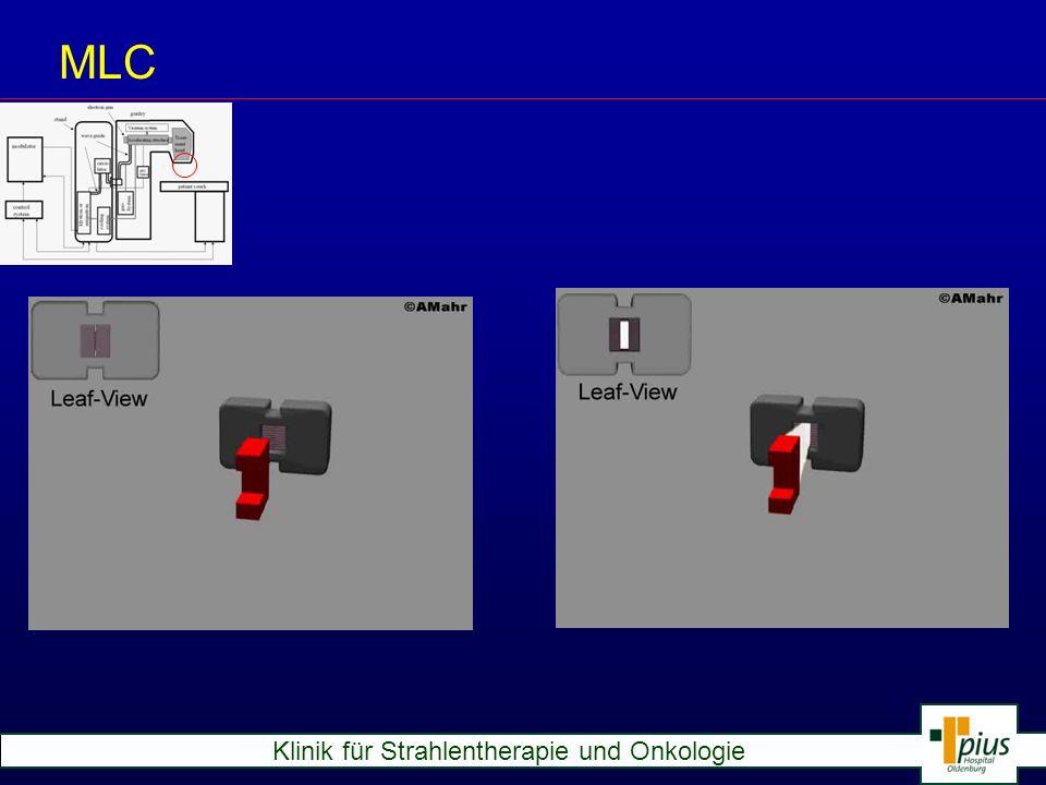 Klinik für Strahlentherapie und Onkologie Typical Treatment: Computer- planning Patient MR-scan CT-scan Image set Simulator Irradiation