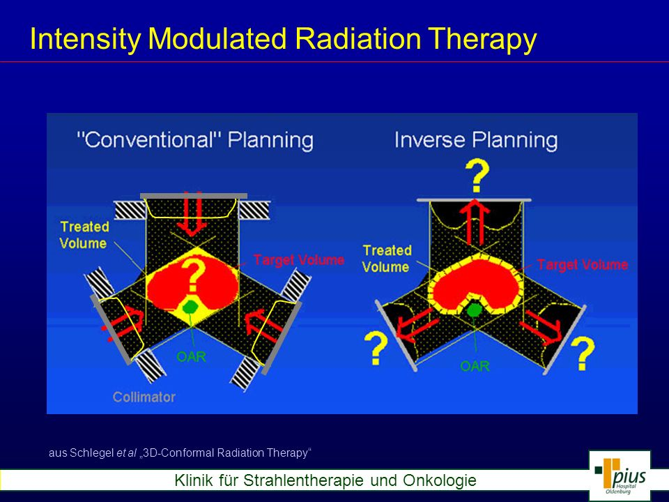 Intensity Modulated Radiation Therapy aus Schlegel et al 3D-Conformal Radiation Therapy