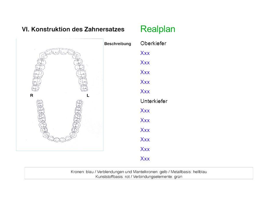 Realplan Oberkiefer Xxx Unterkiefer Xxx Scan der Konstruktion