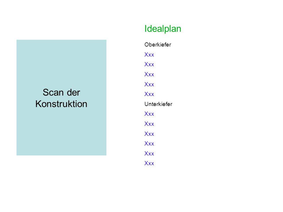 Idealplan Scan der Konstruktion Oberkiefer Xxx Unterkiefer Xxx