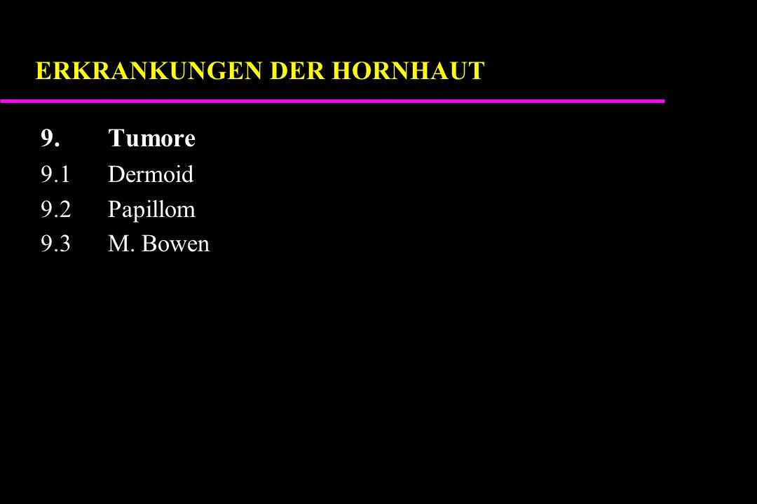 9.Tumore 9.1Dermoid 9.2Papillom 9.3M. Bowen ERKRANKUNGEN DER HORNHAUT