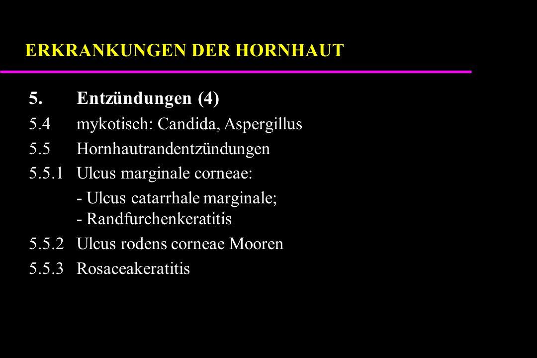 5.Entzündungen (4) 5.4mykotisch: Candida, Aspergillus 5.5Hornhautrandentzündungen 5.5.1Ulcus marginale corneae: - Ulcus catarrhale marginale; - Randfurchenkeratitis 5.5.2Ulcus rodens corneae Mooren 5.5.3Rosaceakeratitis ERKRANKUNGEN DER HORNHAUT