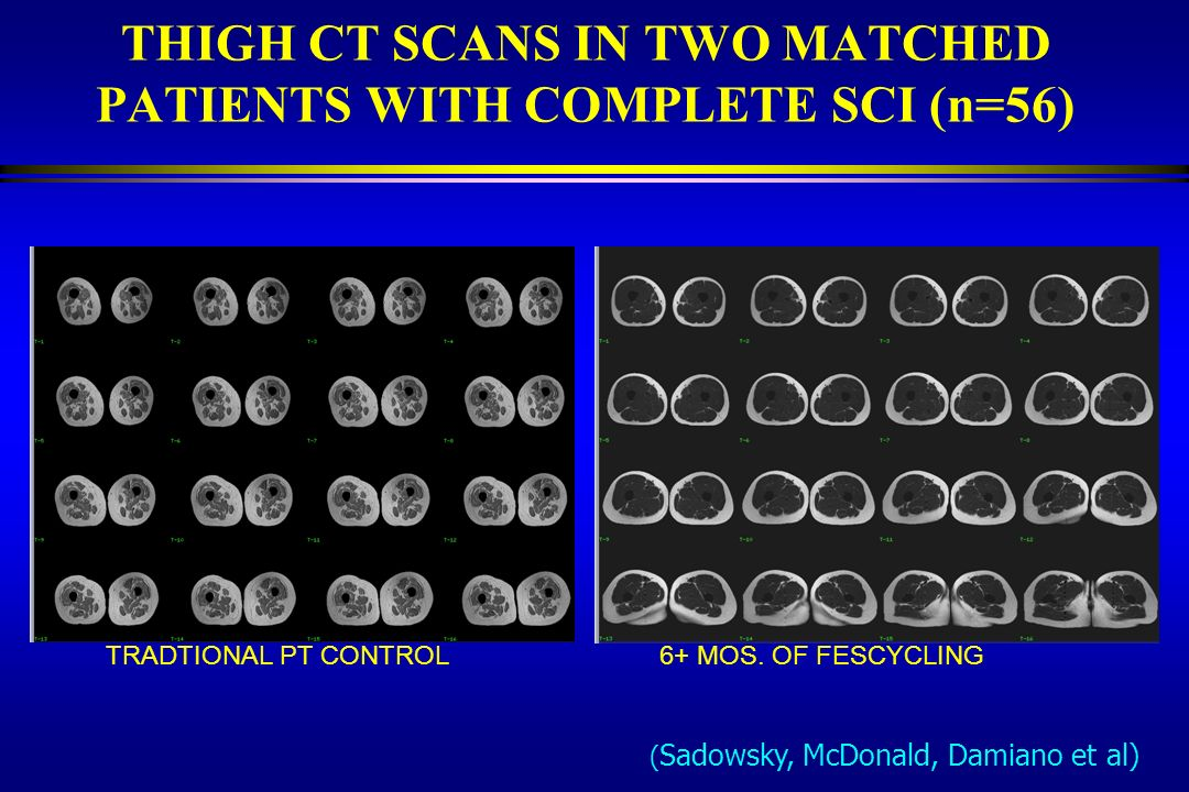 THIGH CT SCANS IN TWO MATCHED PATIENTS WITH COMPLETE SCI (n=56) TRADTIONAL PT CONTROL 6+ MOS. OF FESCYCLING ( Sadowsky, McDonald, Damiano et al)