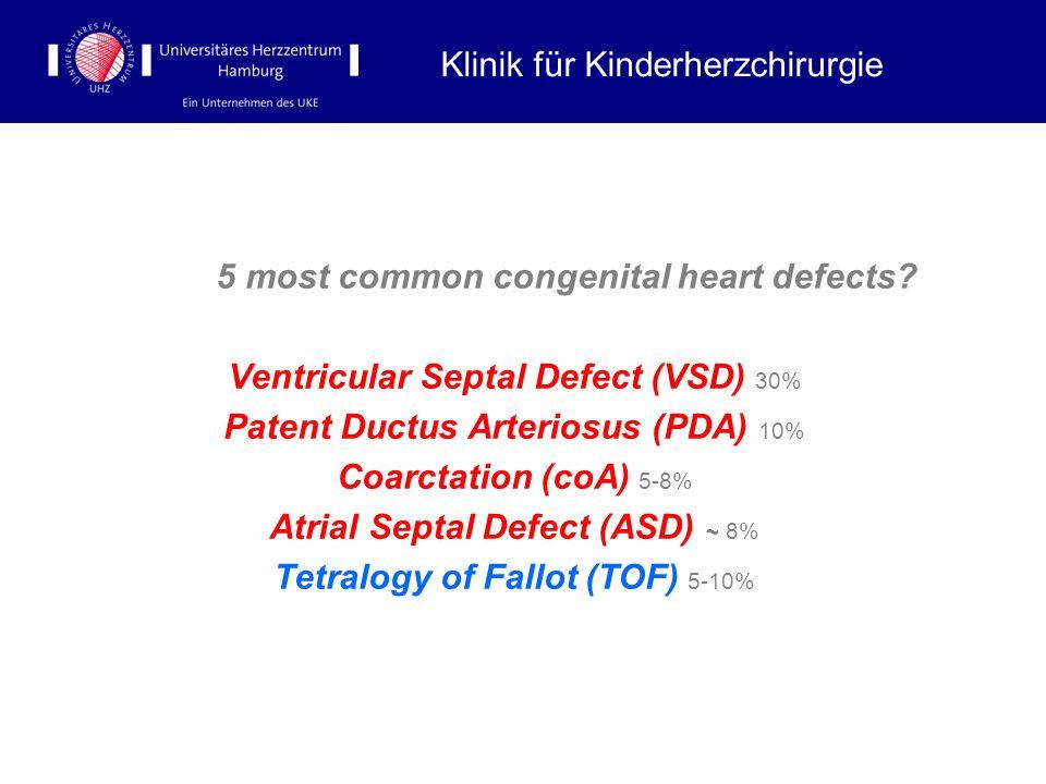 5 most common congenital heart defects? Ventricular Septal Defect (VSD) 30% Patent Ductus Arteriosus (PDA) 10% Coarctation (coA) 5-8% Atrial Septal De