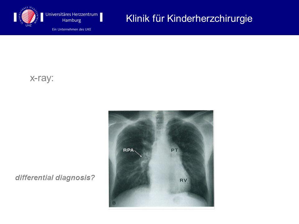 x-ray: differential diagnosis? Klinik für Kinderherzchirurgie