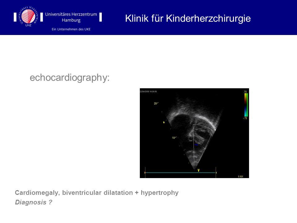 echocardiography: Cardiomegaly, biventricular dilatation + hypertrophy Diagnosis ? Klinik für Kinderherzchirurgie