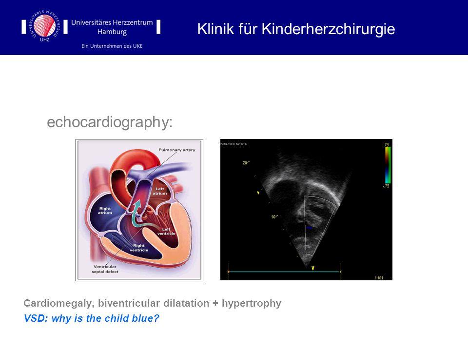 echocardiography: Cardiomegaly, biventricular dilatation + hypertrophy VSD: why is the child blue? Klinik für Kinderherzchirurgie