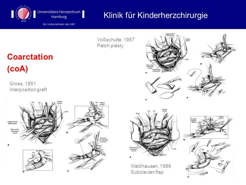 Coarctation (coA) Klinik für Kinderherzchirurgie Voßschulte, 1957 Patch plasty Gross, 1951 Interposition graft Waldhausen, 1966 Subclavian flap
