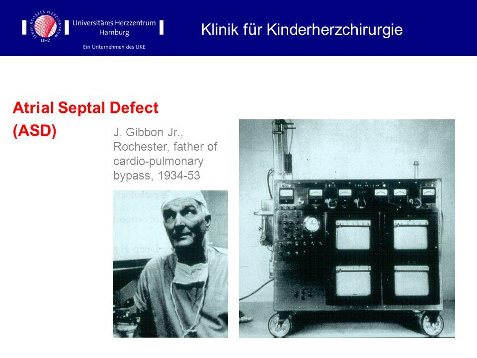 Atrial Septal Defect (ASD) Klinik für Kinderherzchirurgie J. Gibbon Jr., Rochester, father of cardio-pulmonary bypass, 1934-53