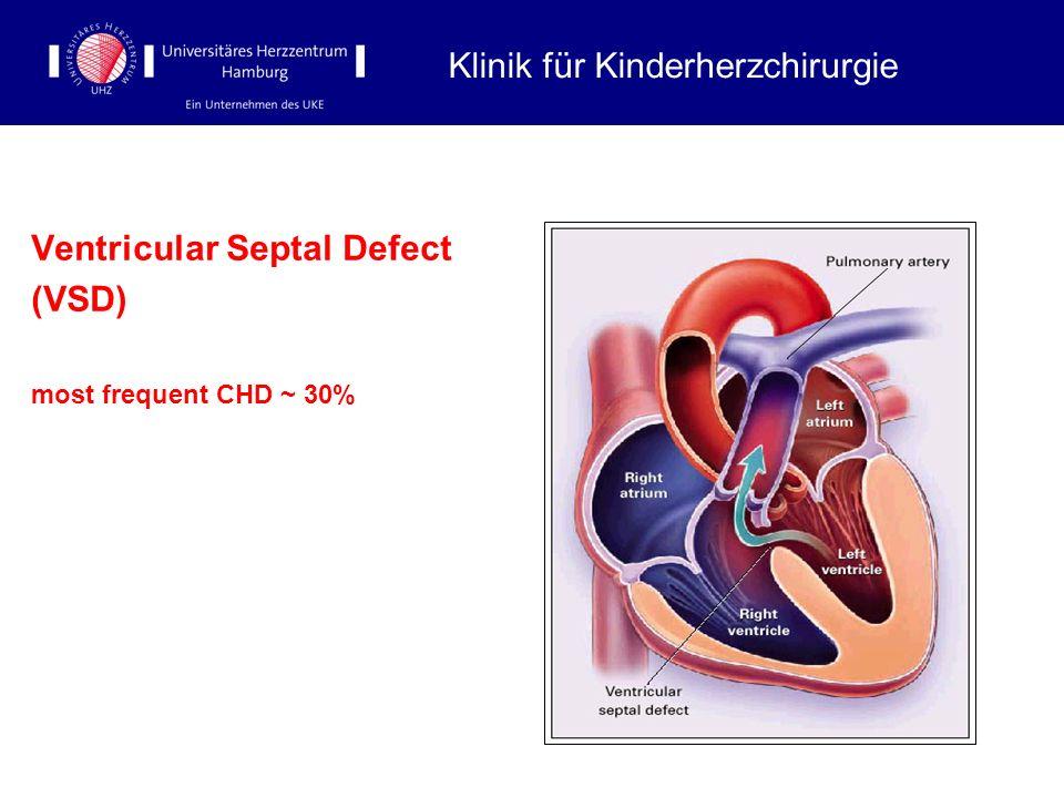Ventricular Septal Defect (VSD) most frequent CHD ~ 30% Klinik für Kinderherzchirurgie