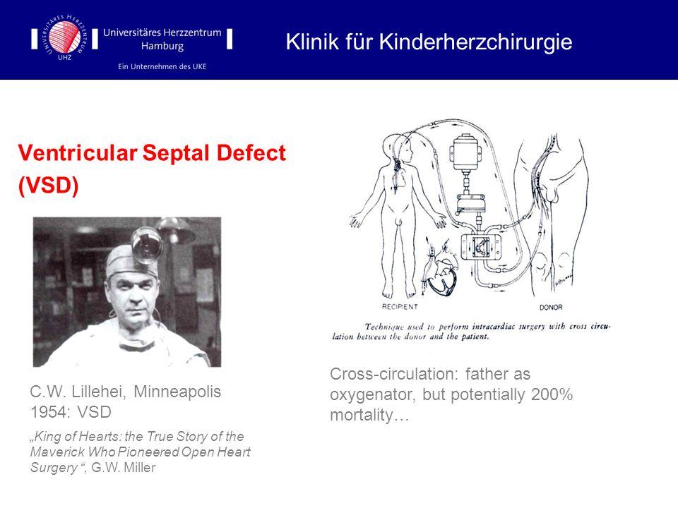 Ventricular Septal Defect (VSD) Klinik für Kinderherzchirurgie C.W. Lillehei, Minneapolis 1954: VSD King of Hearts: the True Story of the Maverick Who