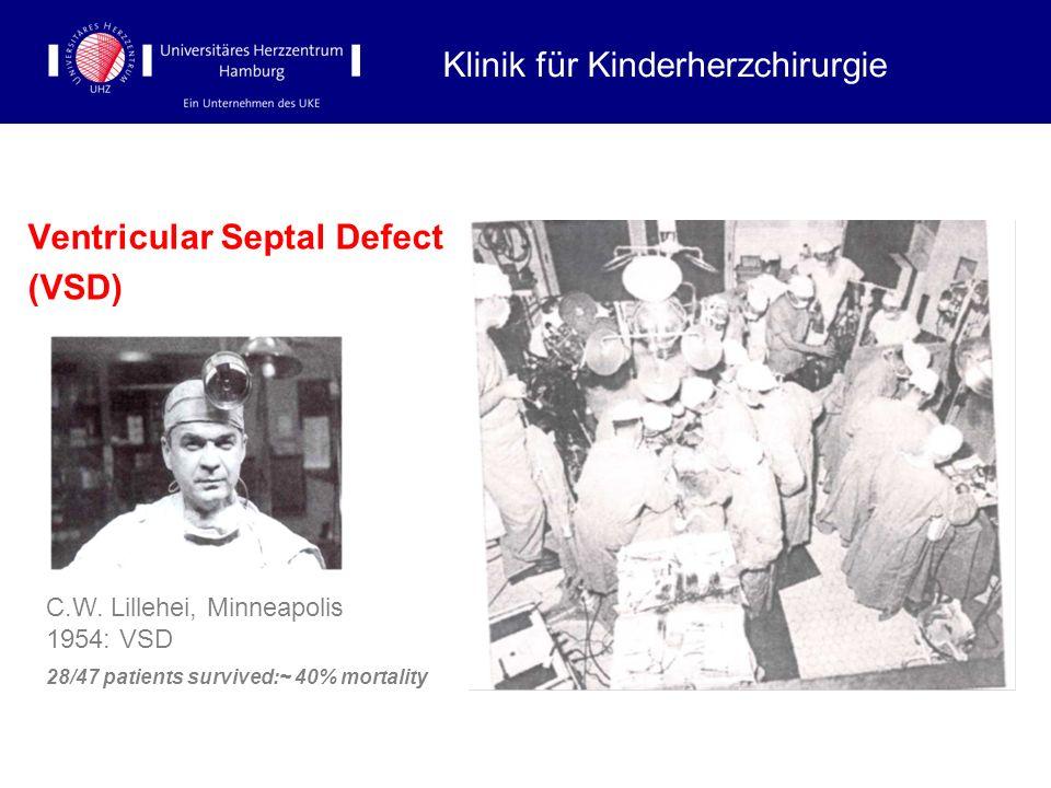 Ventricular Septal Defect (VSD) Klinik für Kinderherzchirurgie C.W. Lillehei, Minneapolis 1954: VSD 28/47 patients survived:~ 40% mortality