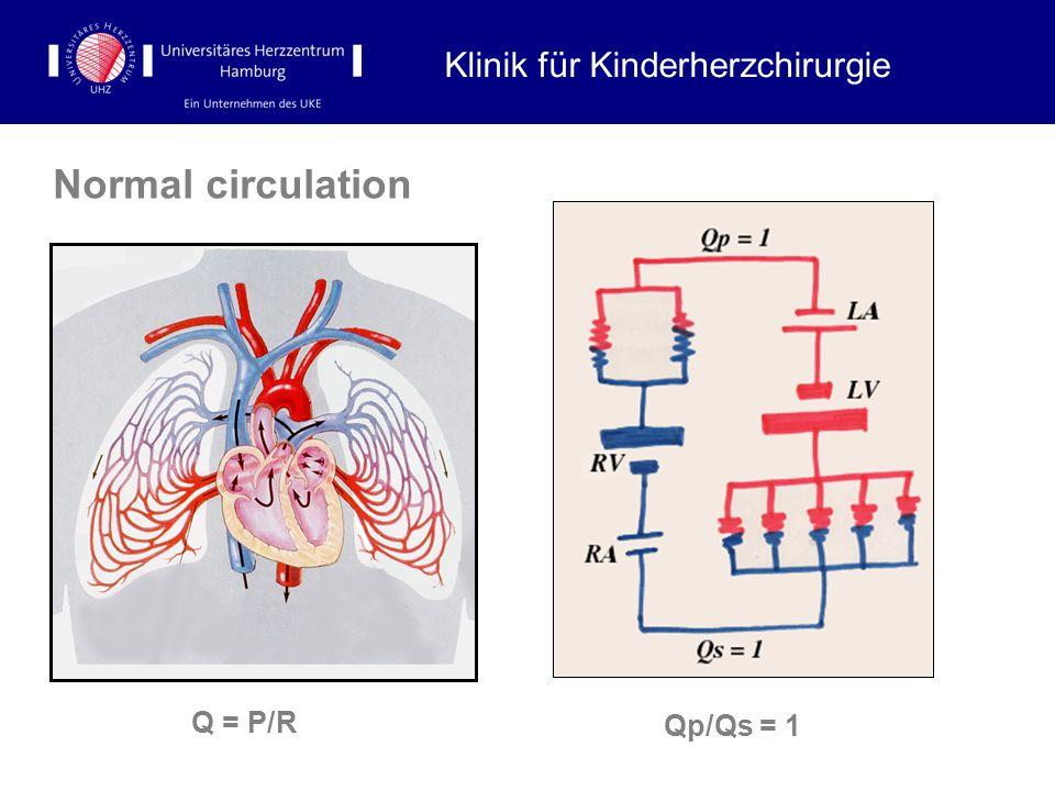 Normal circulation Klinik für Kinderherzchirurgie Qp/Qs = 1 Q = P/R