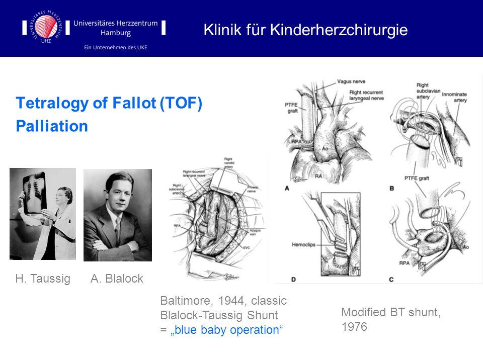 Tetralogy of Fallot (TOF) Palliation Klinik für Kinderherzchirurgie H. Taussig A. Blalock Baltimore, 1944, classic Blalock-Taussig Shunt = blue baby o