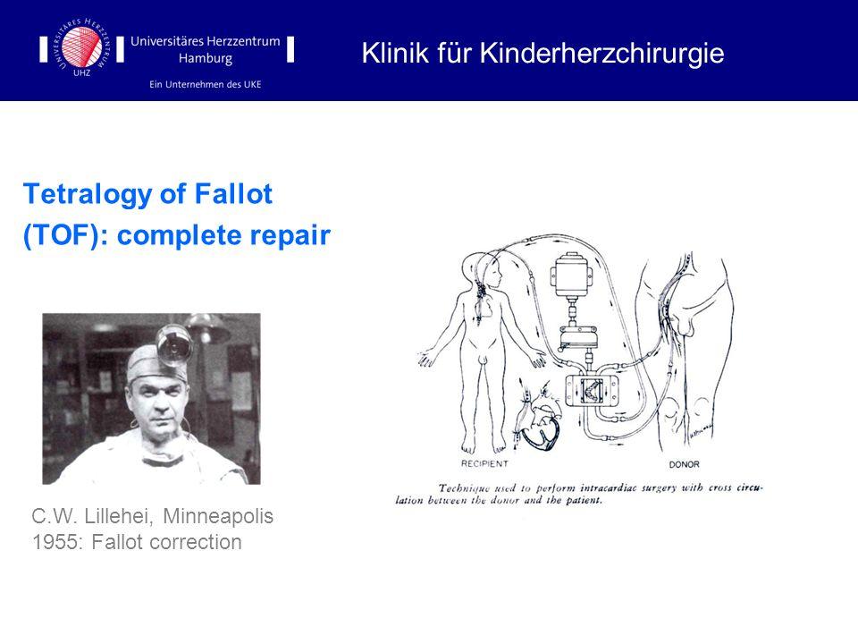 Tetralogy of Fallot (TOF): complete repair Klinik für Kinderherzchirurgie C.W. Lillehei, Minneapolis 1955: Fallot correction
