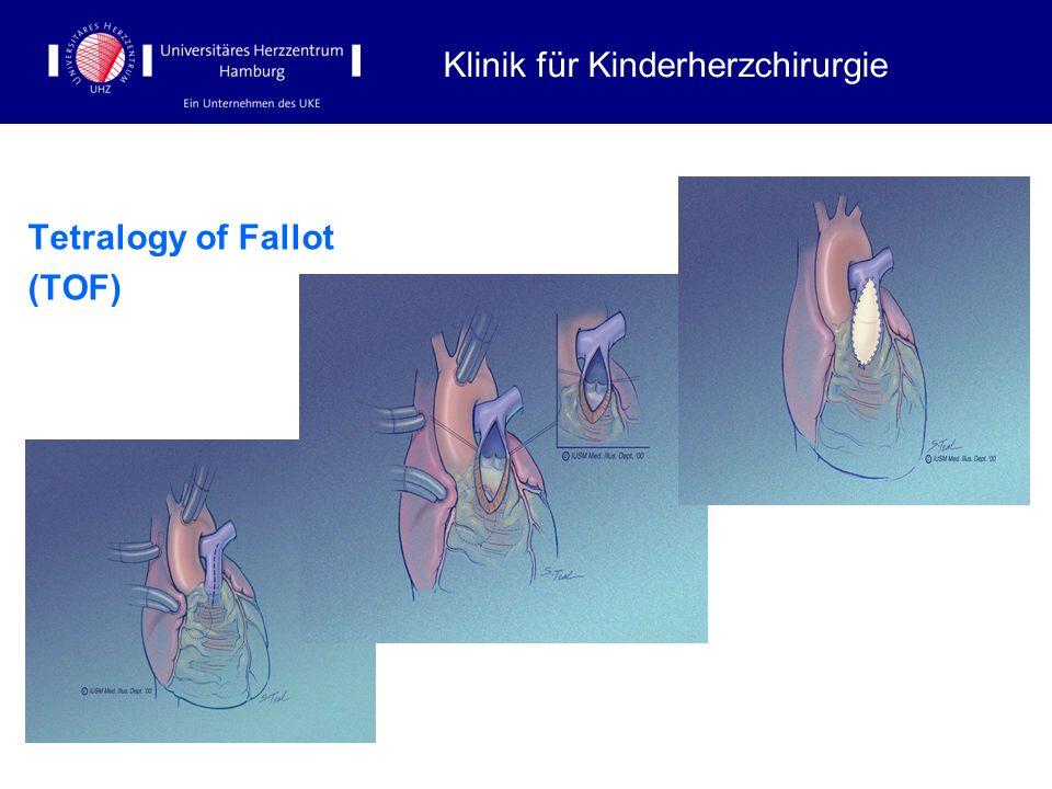 Tetralogy of Fallot (TOF) Klinik für Kinderherzchirurgie