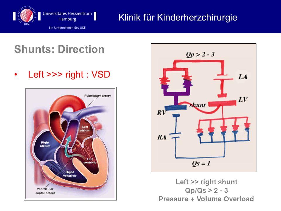 Shunts: Direction Left >>> right : VSD Klinik für Kinderherzchirurgie Left >> right shunt Qp/Qs > 2 - 3 Pressure + Volume Overload