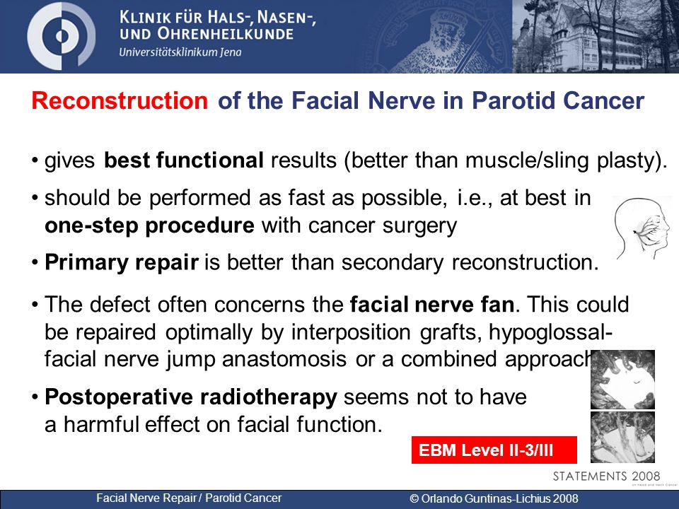 Facial Nerve Repair / Parotid Cancer © Orlando Guntinas-Lichius 2008 Reconstruction of the Facial Nerve in Parotid Cancer should be performed as fast
