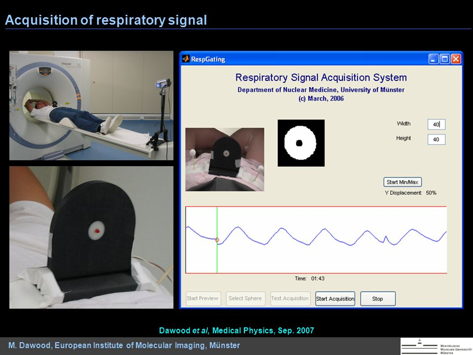 M. Dawood, European Institute of Molecular Imaging, Münster Acquisition of respiratory signal Dawood et al, Medical Physics, Sep. 2007