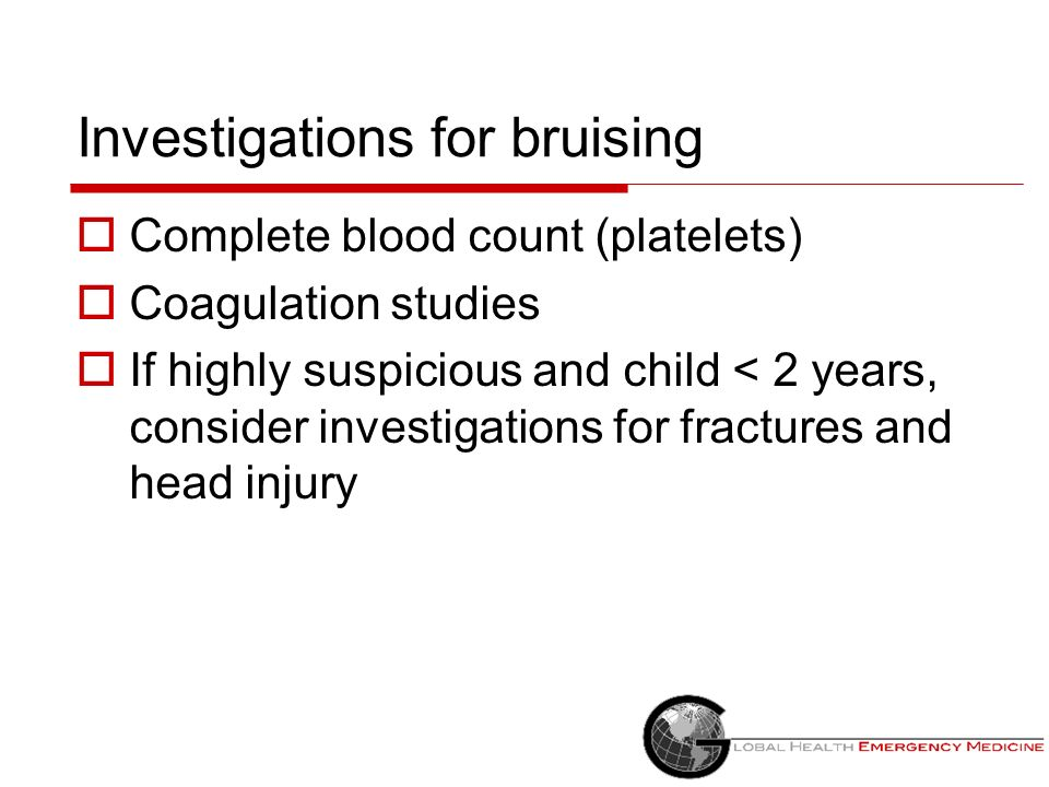 Investigations for bruising Complete blood count (platelets) Coagulation studies If highly suspicious and child < 2 years, consider investigations for